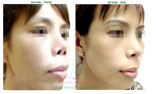 Mũi S line đẹp trên từng milimet ngay sau phẫu thuật - 5
