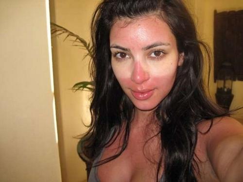 Kim Kardashian với làn da cháy nắng