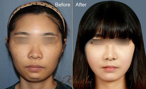 Tiết kiệm 40% dịch vụ mũi đẹp Hàn Quốc - 2
