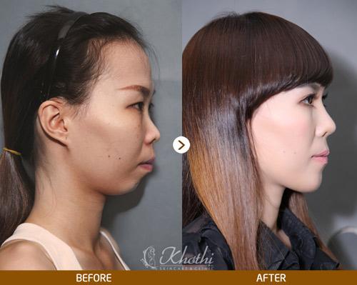Tiết kiệm 40% dịch vụ mũi đẹp Hàn Quốc - 3