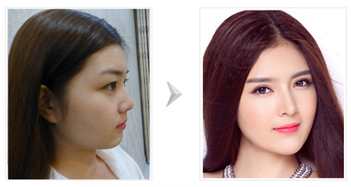Phẫu thuật nâng mũi đẹp ở Bệnh viện Việt Mỹ - 3