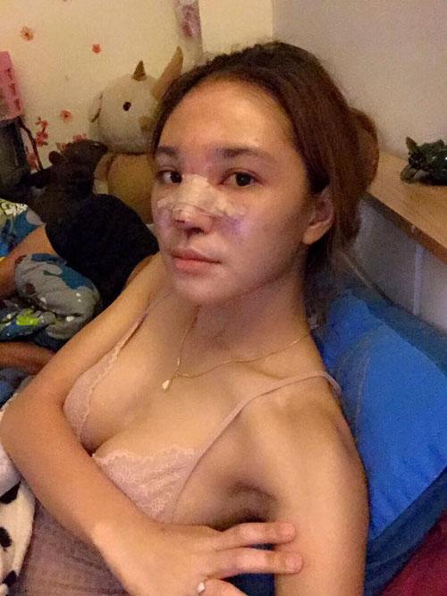 """Hot girl Thái hóa """"mặt quỷ"""" vì sự cố tiêm silicon - 1"""