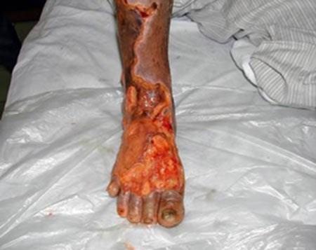 Căn bệnh khiến 20 giây có một người phải cắt chân - 1