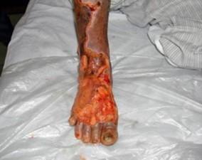 Căn bệnh khiến 20 giây có một người phải cắt chân