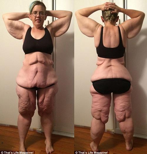 Choáng với da thừa chảy xệ đáng sợ sau khi giảm cân - 3
