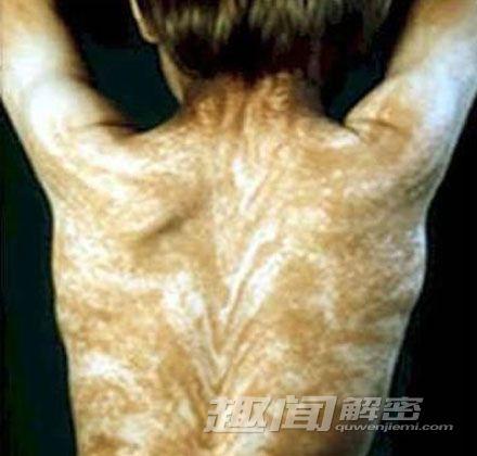 10 căn bệnh đáng sợ trong lịch sử loài người - 4