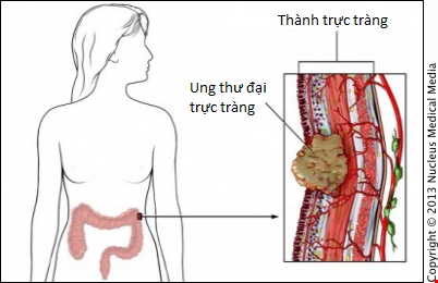 6 cách giảm nguy cơ bị ung thư trực tràng - 1