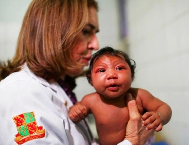 Thêm bằng chứng virus Zika liên quan bất thường não thai nhi - 3