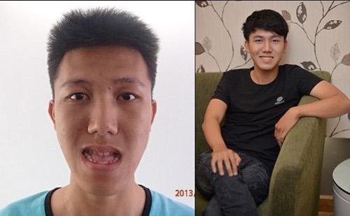 Nhan sắc khác biệt của chàng trai trước và sau thẩm mỹ - 6