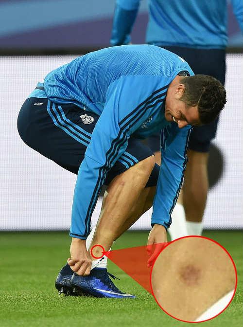 Đồng đội vào quá đà, Ronaldo nhăn nhó ôm chân - 2