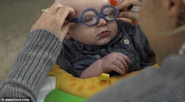 Video: Bé 4 tháng tuổi mắt kém cười toét khi nhìn rõ mẹ - 2