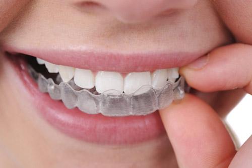 """Niềng răng """"tàng hình"""" cho nụ cười xinh - 3"""