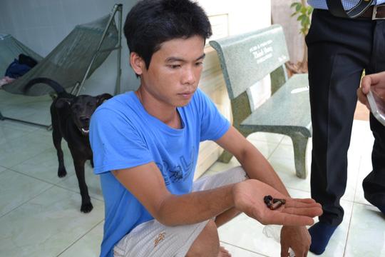 Người dân tố bị công an xã bắn trọng thương - 2