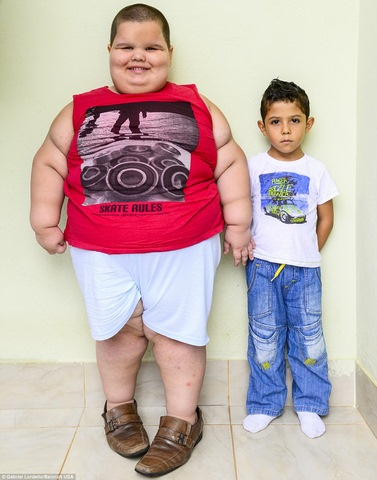 Brazil: Cậu bé 5 tuổi nặng 76kg - 1