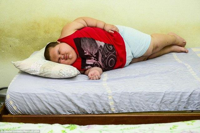 Brazil: Cậu bé 5 tuổi nặng 76kg - 7
