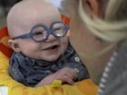 Bạn trẻ - Cuộc sống - Clip bé 4 tháng tuổi mất thị lực lần đầu nhìn thấy mẹ