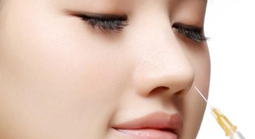 Giải mã 'cơn sốt' nâng mũi không phẫu thuật - 1