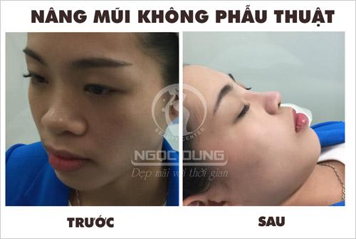Giải mã 'cơn sốt' nâng mũi không phẫu thuật - 2