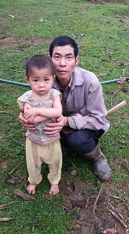 Mẹ bỏ đi, bé trai 4 tuổi lao đao vì bệnh tật - 3
