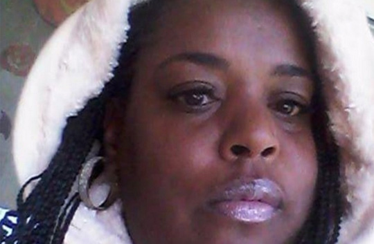 Mỹ: một phụ nữ chết vì… nhổ răng - 1