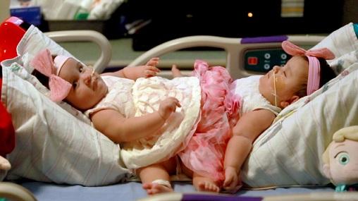 Cặp song sinh chung xương chậu cực hiếm ở Mỹ - 3