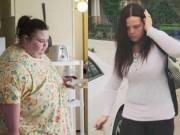 Bạn trẻ - Cuộc sống - Cuộc sống khó tin của cô gái nặng 312 kg cắt bỏ mỡ thừa