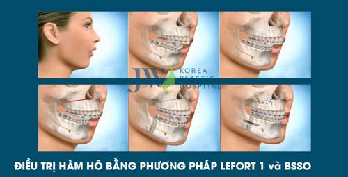 Hô móm - Nên niềng răng hay phẫu thuật hàm? - 2