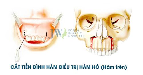 Hô móm - Nên niềng răng hay phẫu thuật hàm? - 3
