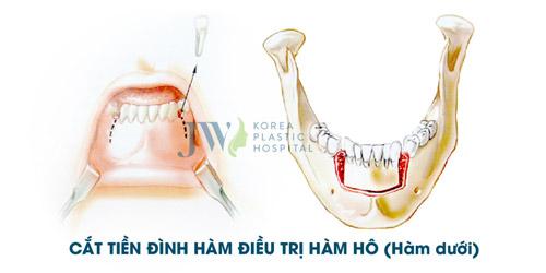 Hô móm - Nên niềng răng hay phẫu thuật hàm? - 4