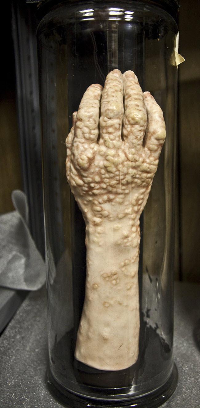 Bảo tàng Mütter ở bang Pennsylvania của Mỹ là một trong những nơi đáng sợ nhất thế giới. Đây là nơi lưu giữ, trưng bày những bộ phận cơ thể, bào thai và tượng sáp.