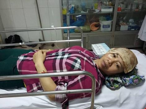 Nghệ An: Nổ lớn ở khu công nghiệp, nhiều người bị thương - 5