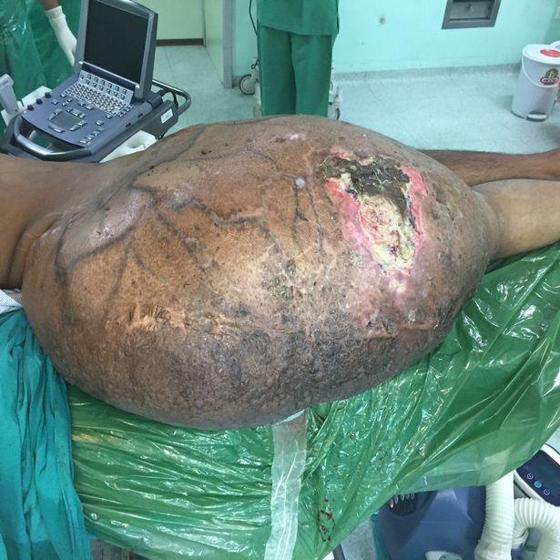 """TQ: Người đàn ông """"chửa"""" khối u 31kg trong bụng - 4"""