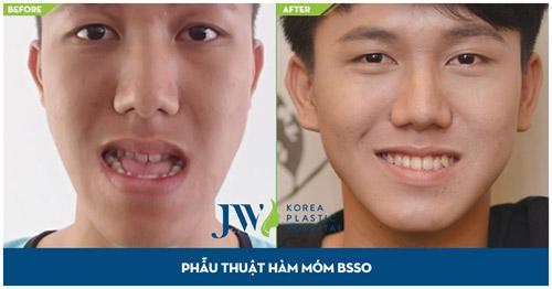 Tư vấn trực tuyến: Niềng răng và phẫu thuật hàm hô móm - 2