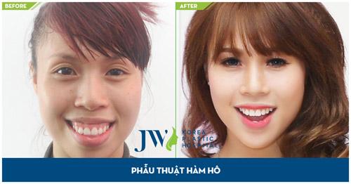 Tư vấn trực tuyến: Niềng răng và phẫu thuật hàm hô móm - 3