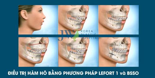 Tư vấn trực tuyến: Niềng răng và phẫu thuật hàm hô móm - 4