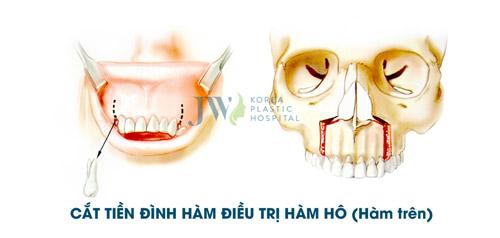 Tư vấn trực tuyến: Niềng răng và phẫu thuật hàm hô móm - 5