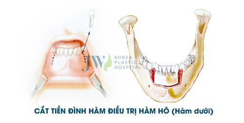 Tư vấn trực tuyến: Niềng răng và phẫu thuật hàm hô móm - 6
