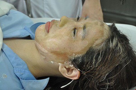 Nữ sinh bị tạt axit sẽ được phẫu thuật mắt vào ngày mai - 1