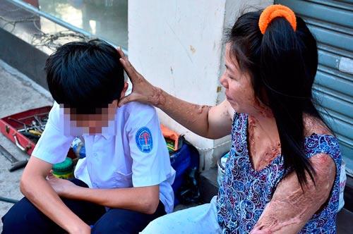 Nỗi đau người mẹ bị tạt axit: Bỏ việc vì sợ con tự tử - 1