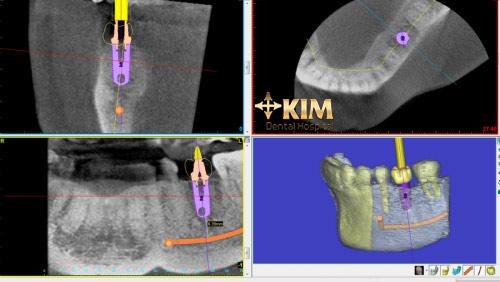 Cấy răng Implant, ghép xương, ghép nướu không đau - 4