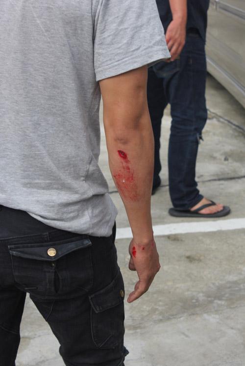 Lý Hải liên tiếp gặp tai nạn đổ máu trên phim trường - 8