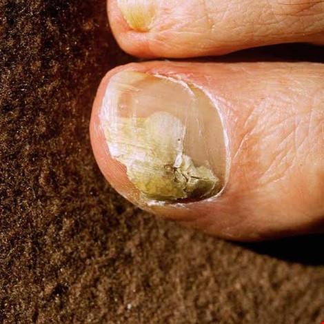6 mẹo dễ dàng giúp trị bệnh nấm móng - 1