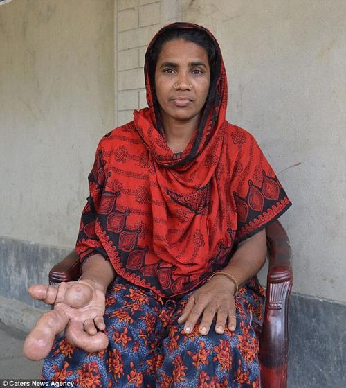 Hiếm gặp: Người phụ nữ sở hữu ngón tay to dị thường - 1
