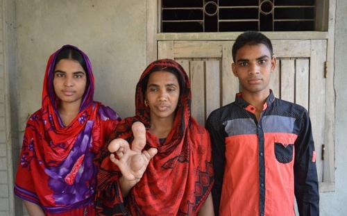 Hiếm gặp: Người phụ nữ sở hữu ngón tay to dị thường - 2