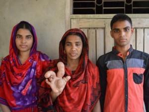 Hiếm gặp: Người phụ nữ sở hữu ngón tay to dị thường