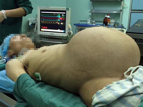 Trung Quốc: Người đàn ông mang khối u cứ ngỡ mình mang bầu - 1