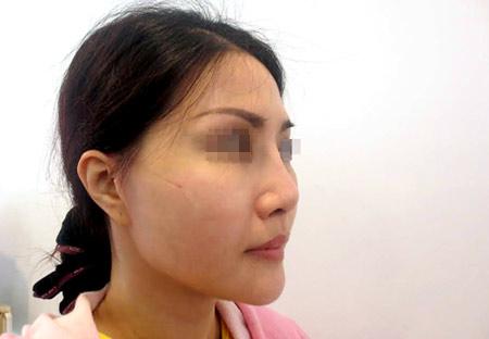 Giải pháp nào cho người đã phẫu thuật mũi hỏng? - 2