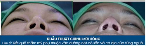 Giải pháp nào cho người đã phẫu thuật mũi hỏng? - 3