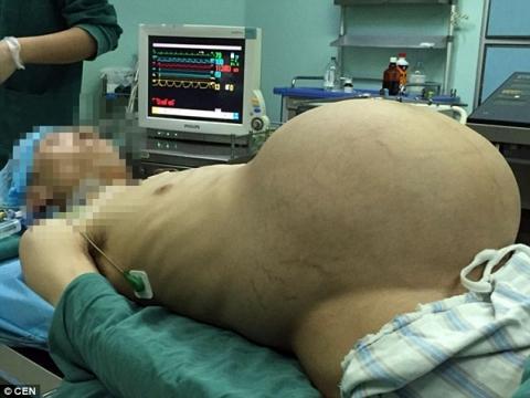 """Kinh hoàng người đàn ông """"mang thai"""" khối u 15kg suốt 10 năm - 2"""