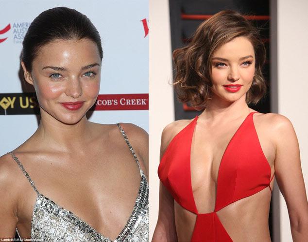"""Ngực bơm """"lớn vượt mặt"""" đã lỗi thời ở Hollywood - 4"""